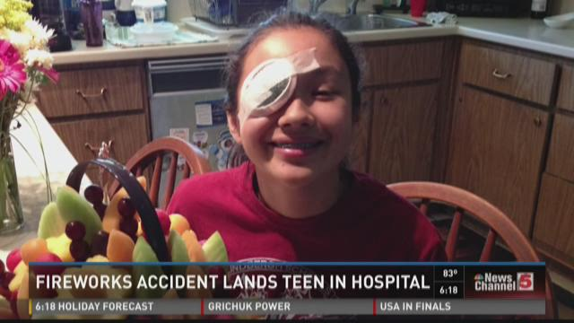 Fireworks accident lands teen in hospital