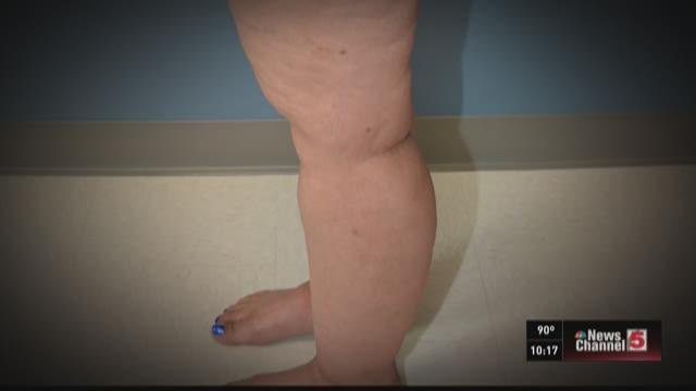 Lipedema: Disabling fat