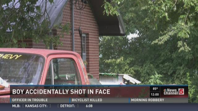 Boy accidentally shot in face