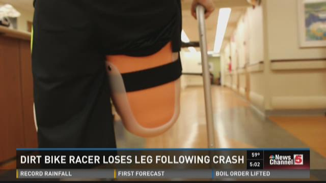 Dirt bike racer loses leg following crash